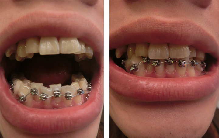 Orthodontics1